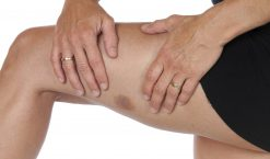 Comment soigner un hematome ?
